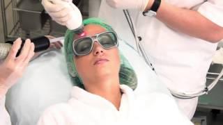 Фракционный лазер Fraxel, клиника Махаон(, 2014-04-23T10:47:25.000Z)