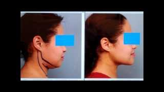 Chin SmartLipo, Neck Liposuction Case Study | Dr. Sterry