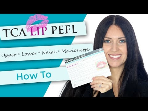 TCA Lip Peel   Demonstration + After Care   Smokers Lines   Marionette   Nasal Labial