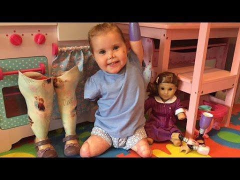 Quadruple Amputee Toddler Gets Custom American Girl Doll: