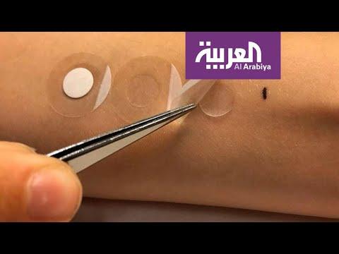 صباح العربية | لصقة تشخّص سرطان الجلد  - 12:00-2019 / 11 / 19