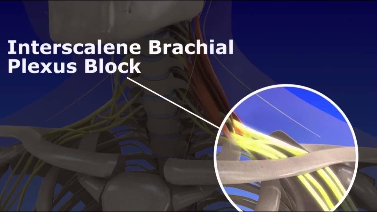 Interscalene Brachial Plexus Block - YouTube