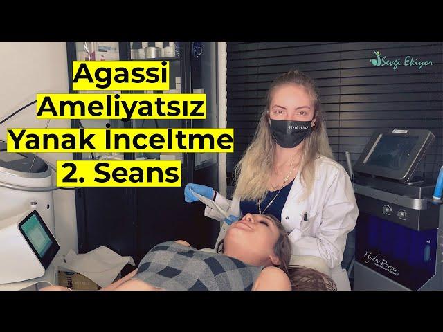 Agassi - Ameliyatsız Yanak İnceltme | 2. Seans
