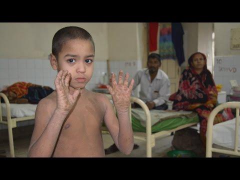 Bangladeshi Boy Shows Miraculous Recovery