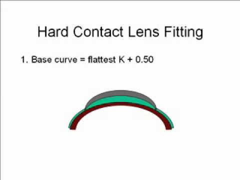 Lecture 17, Hard Contact Lenses