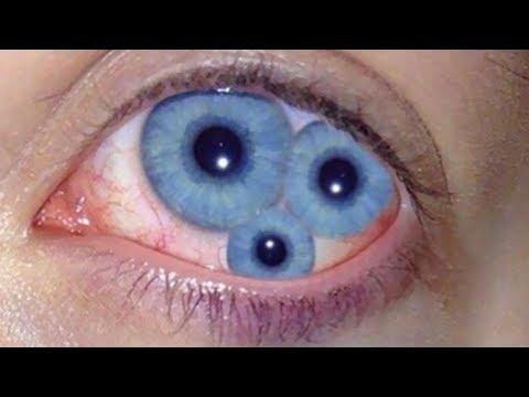 Double Eyes! Most Incredible People on Earth! - YouTube