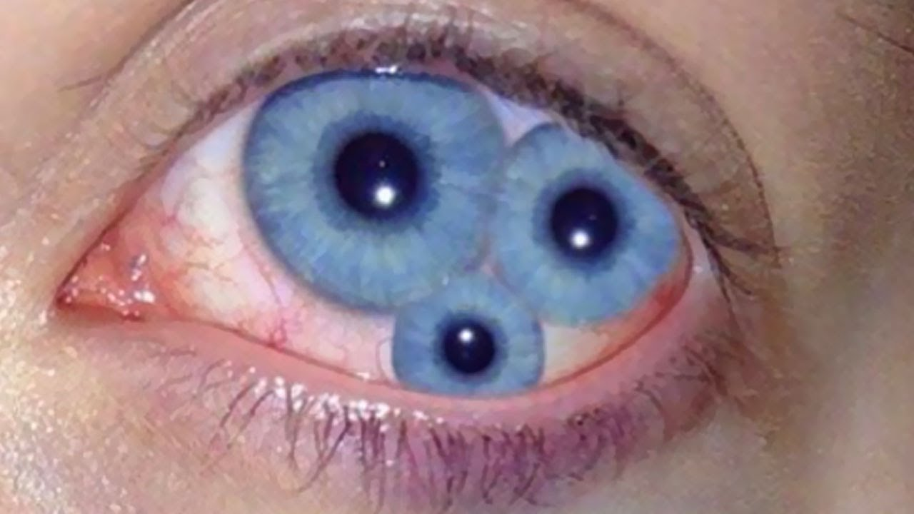 Double eyes most incredible people on earth youtube double eyes most incredible people on earth publicscrutiny Gallery