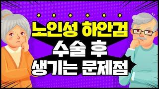 [대전 어울림성형외과] 지방재배치 노인성 하안검 수술 …
