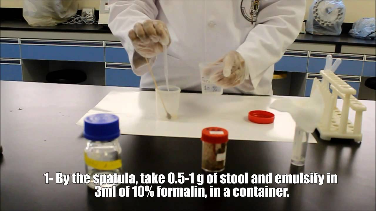 Microscopic Examinations Of Stool Sample Youtube