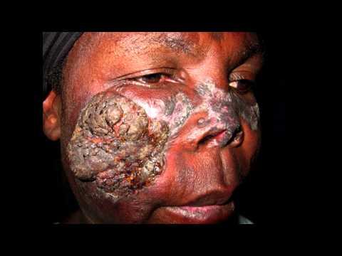 Что такое проказа болезнь фото симптомы