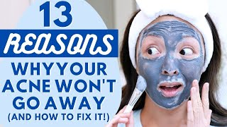 13 Reasons Why Your Acne WON'T Go Away (And How To Fix It!)