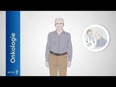 Metastasiertes Prostatakarzinom: Entstehung, Untersuchung & Behandlung