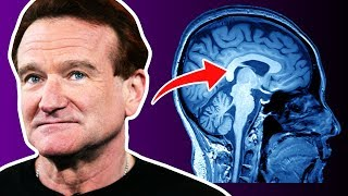 The Real Reason Why Robin Williams Passed Away | ⭐OSSA