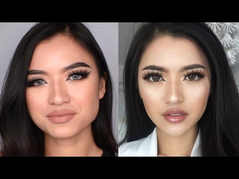 MY BOTOX + FILLER STORY (+COST) Bahasa Indonesia