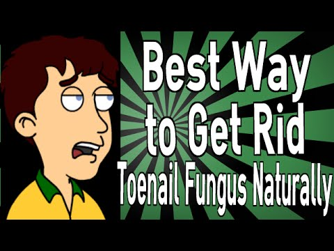 Best Way to Get Rid of Toenail Fungus Naturally