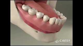 River Road Dental: Denture Relines