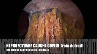 chirurgie coelioscopique - néphrectomie gauche coelioscopique (laparoscopic nephrectomy)