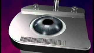3D Lasik Eye Surgery Animation