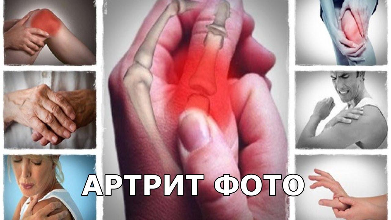 Артрит на ръцете: 7 природни лека за облекчаване на симптомите