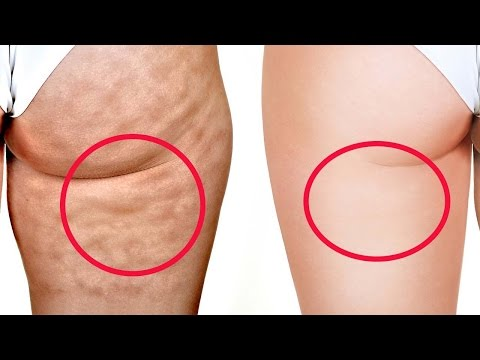 Why apple Cider Vinegar Helps Cellulite Disappear #2