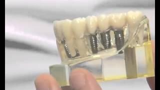 Çakma diş implant nedir?-Serkan Tüzün
