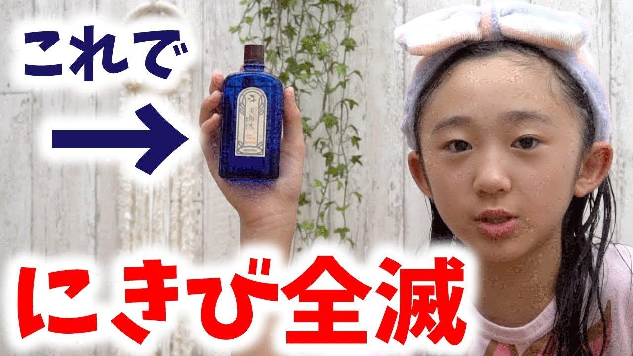 高校生 思春期ニキビ 化粧水