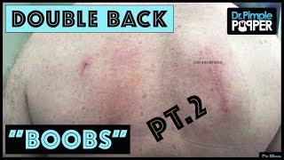Part 2: No More Back Boobs