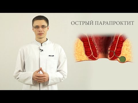 острый парапроктит лечение, диагностика