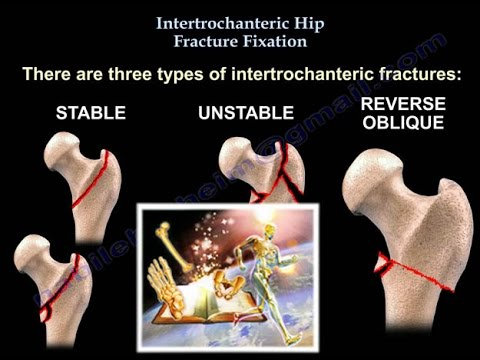 Intertrochanteric Hip Fractures - Everything You Need To Know - Dr ...