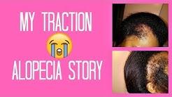 My Traction Alopecia Hair Loss Story | Regrowth Journey | Hair Transplant