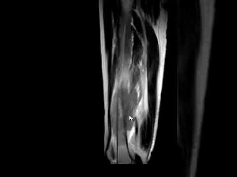Bone tumor on MRI #MedicalRadiology