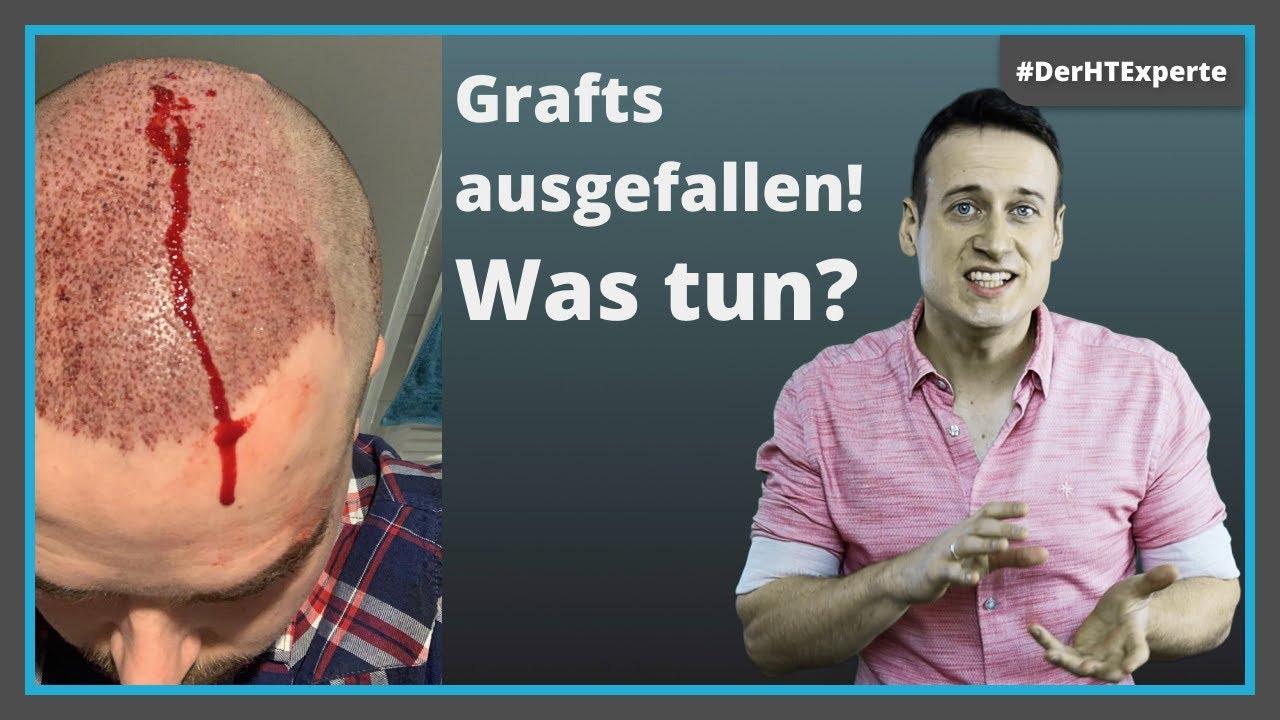 Haartransplantation: Wann sind die Grafts fest? [Krusten