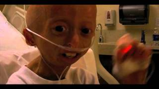 For more information about hana, please visit http://www.hanahwang.com. to learn progeria, http://www.progeriaresearch.org. feb. 9, 2012 - h...