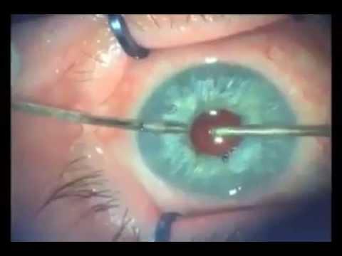 Opera 231 227 O Para Mudar A Cor Dos Olhos Youtube