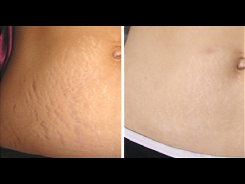 How to Remove Stretch Marks within a Month | Stretch Marks after Pregnancy