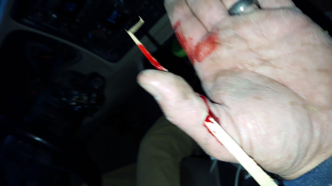 指に刺さった木片を勢いよく抜く医師がヤバイww