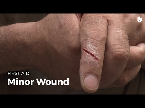 First Aid: Minor Wound | First Aid