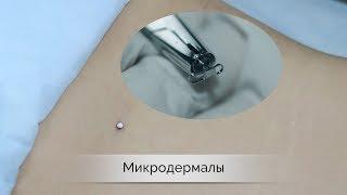 Микродермал - установка