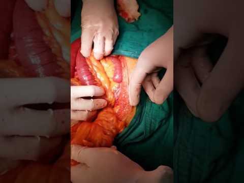 Occlusion Intestinale Aiguë  Hernie  Interne Piegage Trans Mesosigmoide