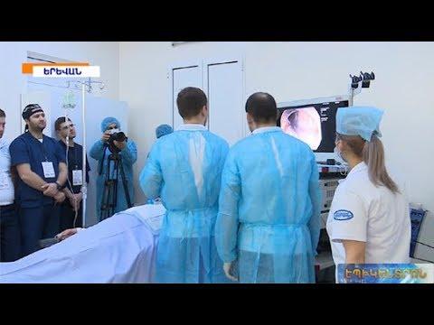 Կերակրափողի ախալազիայի բացառիկ վիրահատություն «Էրեբունի» ԲԿ-ում