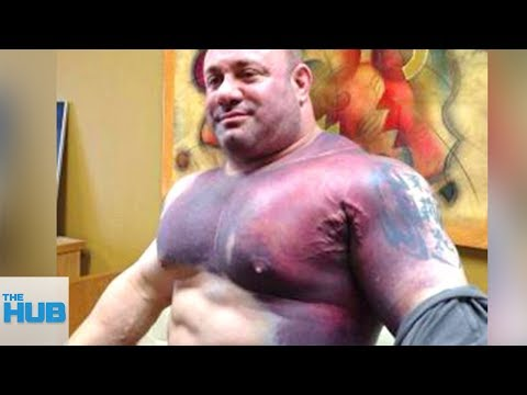 Download Youtube: Bodybuilders Whose MUSCLES EXPLODED!