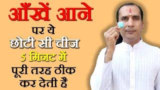 Home Remedies For Pink Eye In Hindi - आँखें दुखने के घरेलू उपचार @ jaipurthepinkcity.com