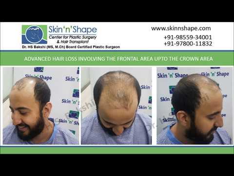 Cost of Hair Transplant in Chandigarh, Punjab, India - Skin-n-Shape - Dr. HS Bakshi
