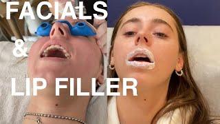 Download i got lip filler  *VLOG*