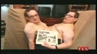 World's Oldest Conjoined Twins, Ronnie &  Donnie Galyon