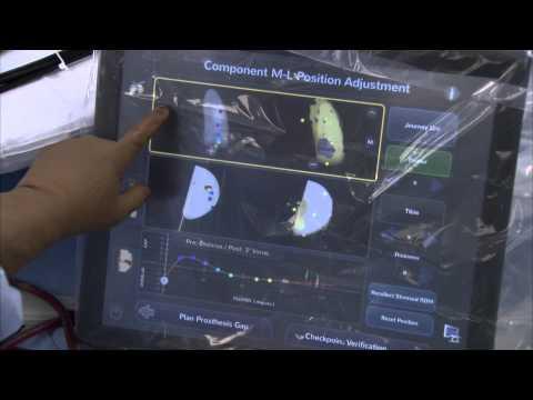 JOURNEY™ UNI Knee Featuring Blue Belt's robotics-assisted Navio Surgical System