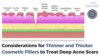 Acne Scar Treatment - Different Depths for Thinner and Thicker Cosmetic Fillers   Amiya Prasad, M.D.