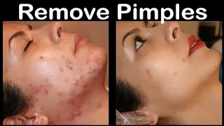 How To Remove Pimples Overnight | Acne Treatment | Papa's Tips