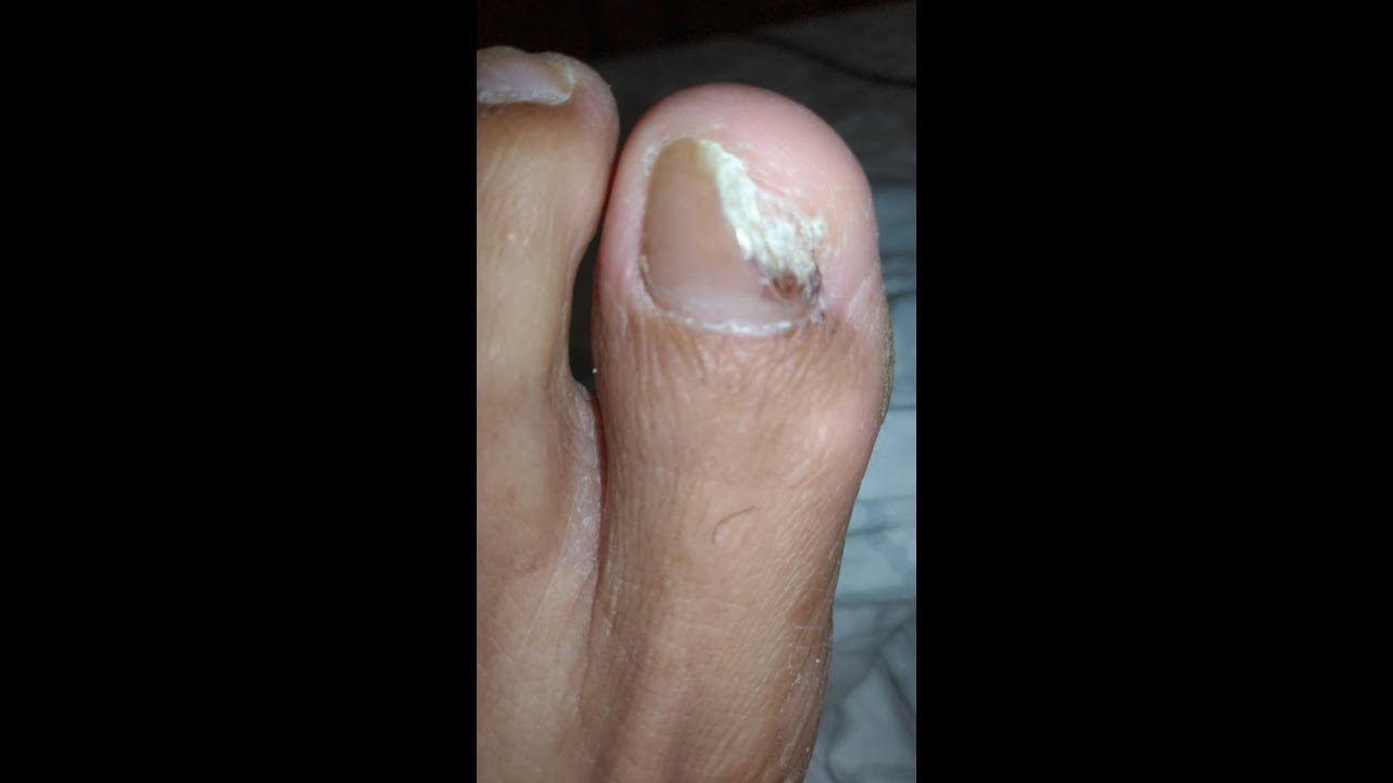 How I Got Rid Of Toenail Fungus with BLEACH Fast!! - YouTube