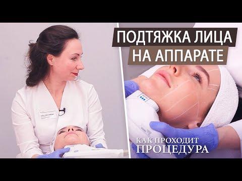 Альтера терапия - безоперационная подтяжка лица на аппарате. Как убрать брыли и второй подбородок